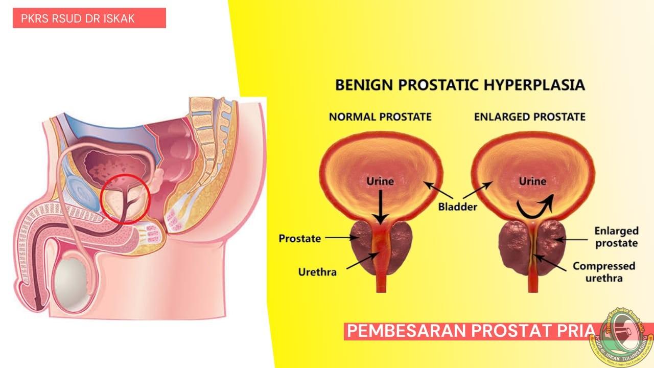 Gangguan Prostat pada Pria. Kenali Penyebab dan Cara Penanganannya