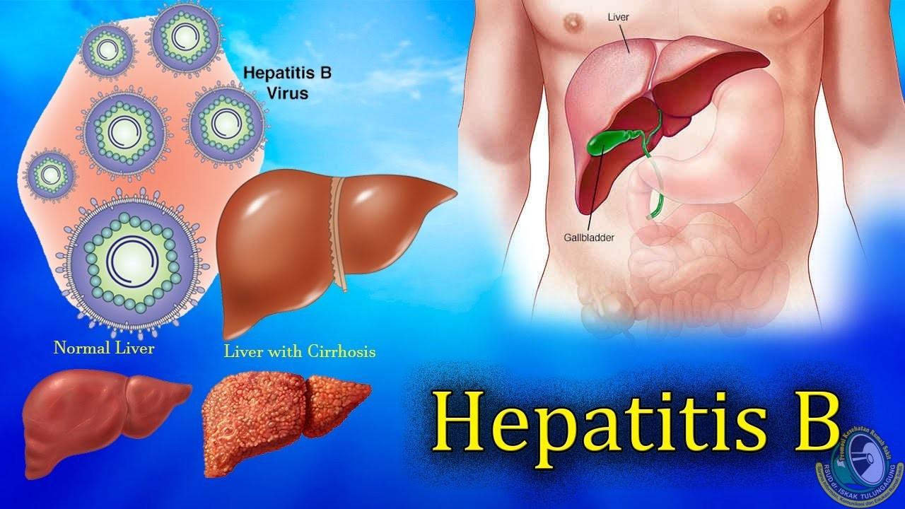 Segera Tangani Hepatitis Demi Kualitas Hidup yang Lebih Baik